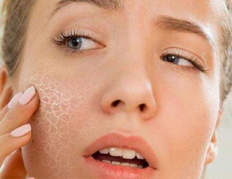 маски от шелушения кожи лица